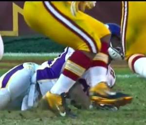 Peterson, clearly in agony after suffering a season ending knee injury.